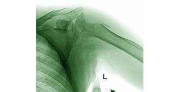 Повреждение плечевого сустава