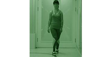 Коррекция нарушения функции ходьбы при ДЦП