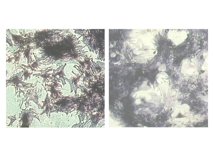 Морфо-функциональные изменения мезенхимальных стволовых клеток