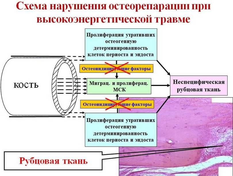 Клеточные механизмы нарушения сращения переломов